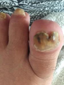 nagelreparatie1