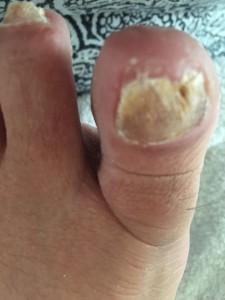nagelreparatie3